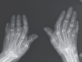 a radiograph of the woman's hands