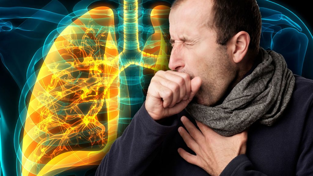 Pneumonia? the doctor explained how to independently detect desies.